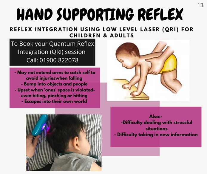 Hand Supporting Reflex