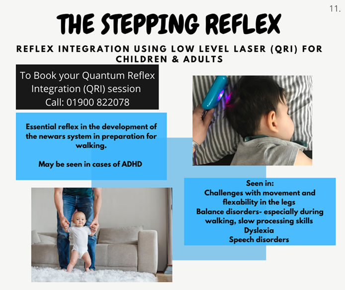 The Stepping Reflex